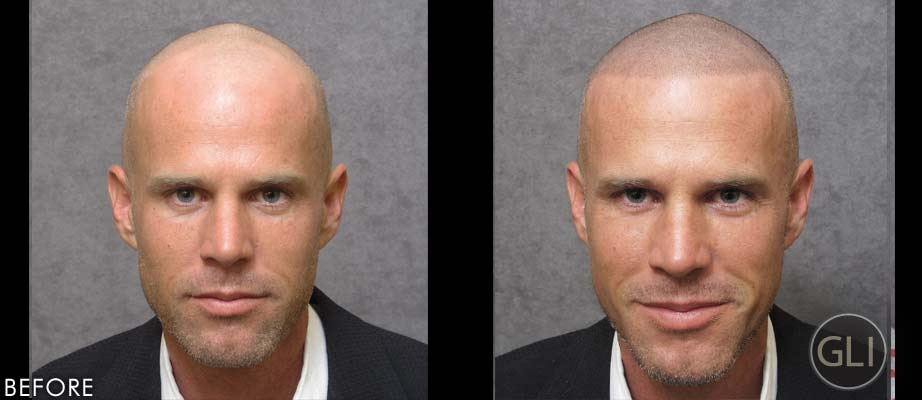 SMP for balding before & after - Jason front