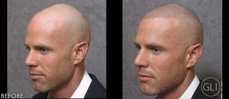 Before & after Scalp Micropigmentation - Jason side