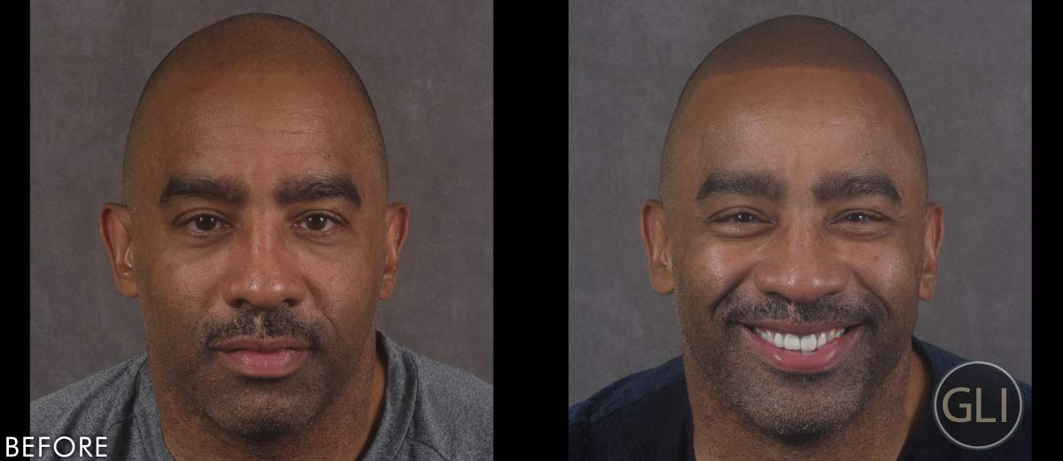SMP for balding before & after - Ken front