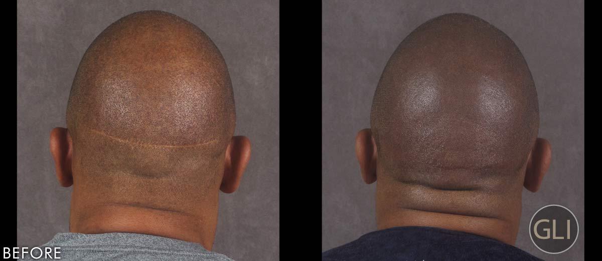 Scalp Micropigmentation before & after - Ken back
