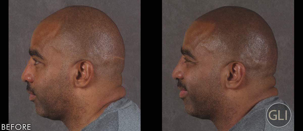 Before & after Scalp Micropigmentation - Ken left side