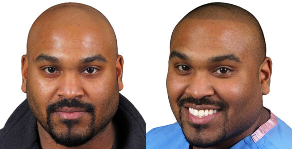 Gli Gallery Scalp Micropigmentation Before Amp After