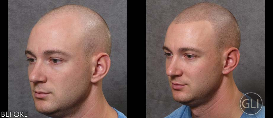 SMP for hair loss before & after - Alex side