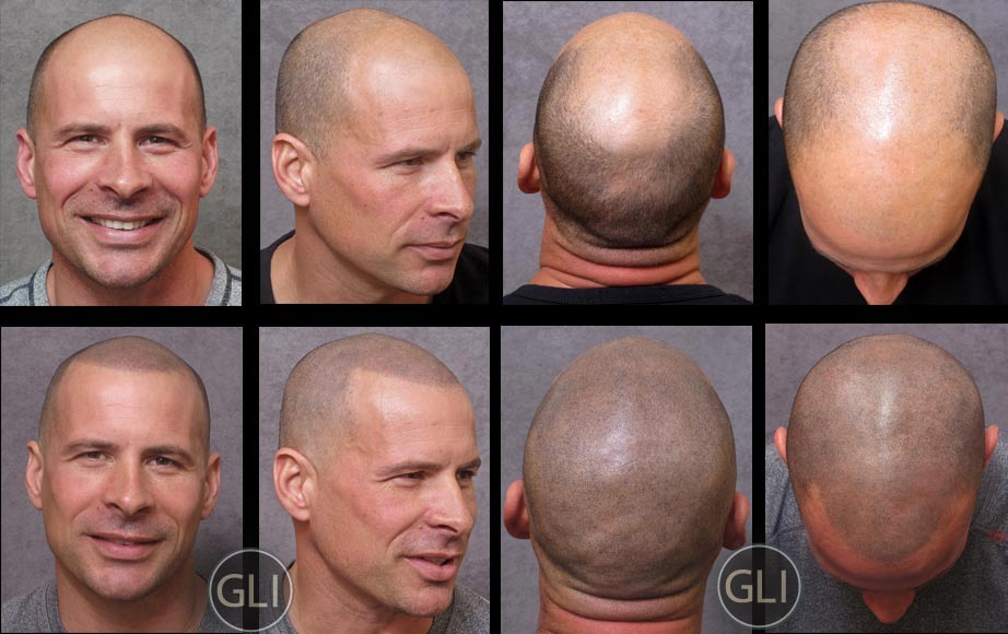 Before & after collage of Scalp Micropigmentation - Mike