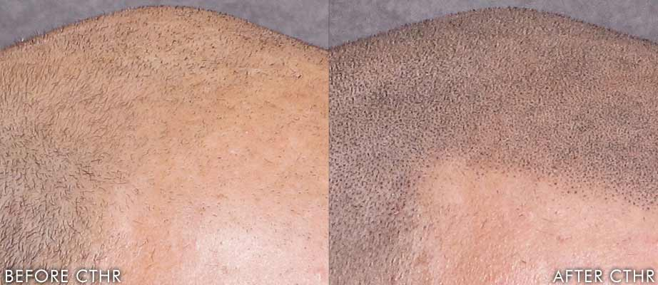 Scalp Micropigmentation before & after close up - Mike