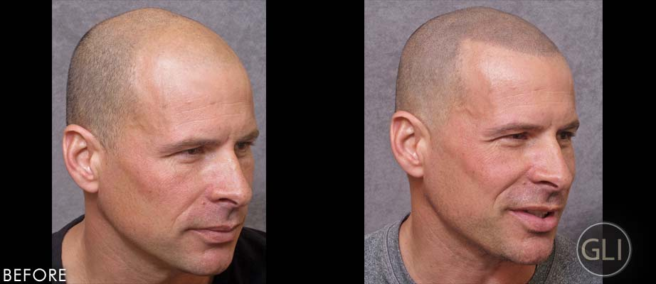 SMP for hair loss before & after - Mike side