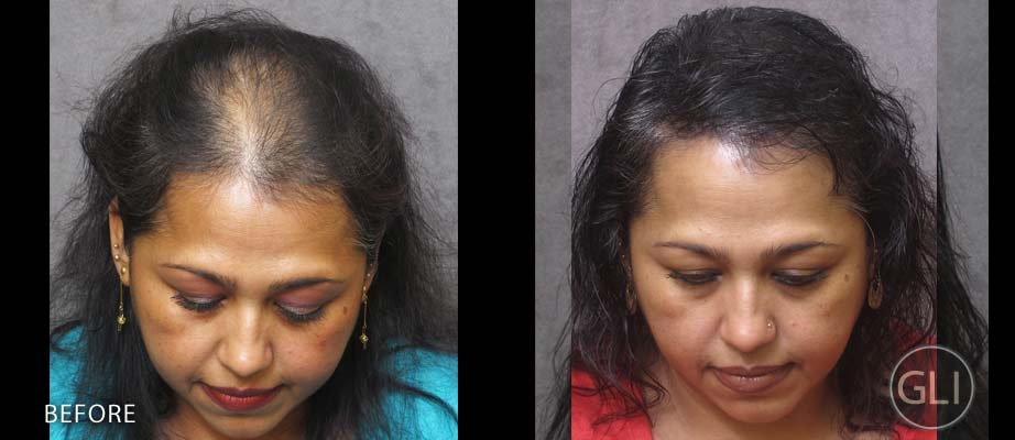 SMP for women with thinning hair before & after - Naseem top front