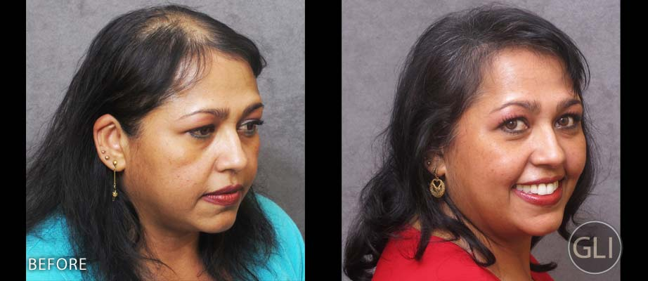 Before & after SMP for women - Naseem