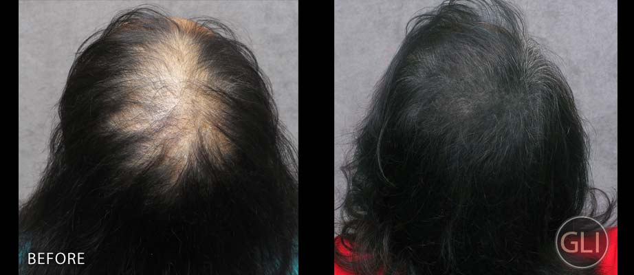 Before & after scalp micropigmentation - Naseem top back