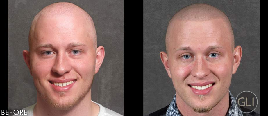 SMP for balding before & after - Nathan front