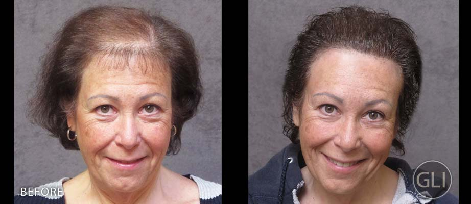 SMP for women with thinning hair before & after - Sue front