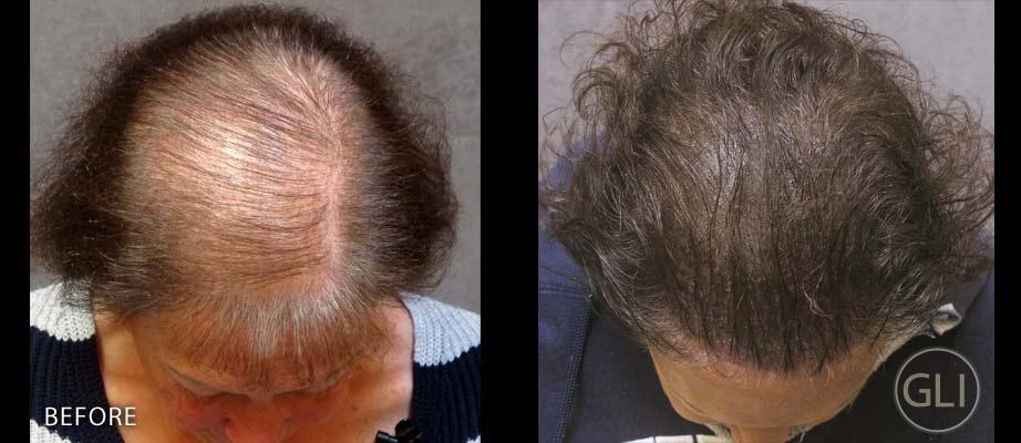 Scalp Micropigmentation for women - Sue top