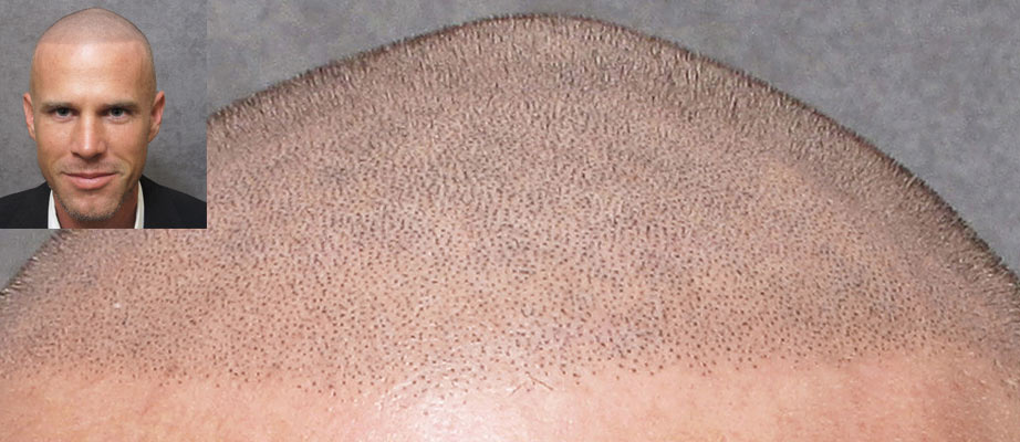 Scalp Micropigmentation up close
