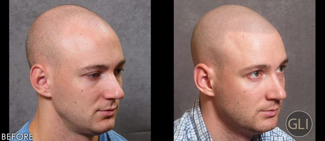 Scalp Micropigmentation before & after - Alex right side