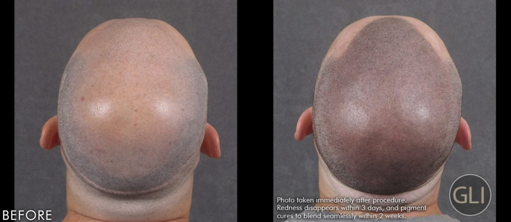 Hair transplant repair with Scalp Micropigmentation - Arthur back