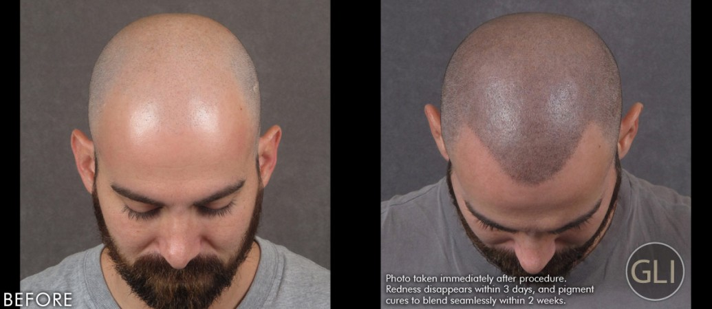 SMP for hair transplant scars before & after - Arthur top