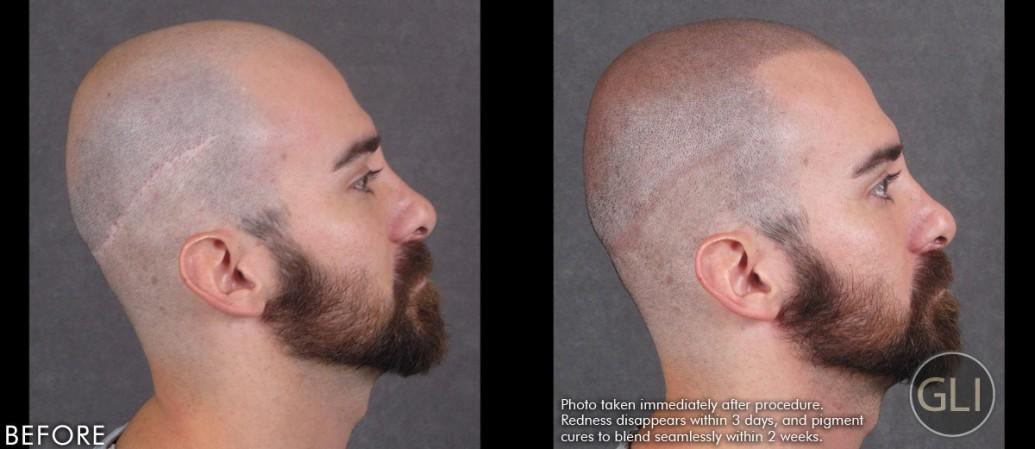 Before & After Scalp Micropigmentation - Arthur left side