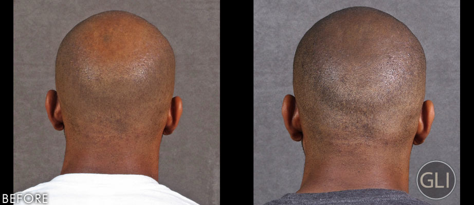 Scalp micropigmentation before & after - Erik back