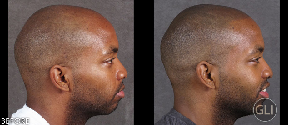 Before & after scalp micropigmentation - Erik right side