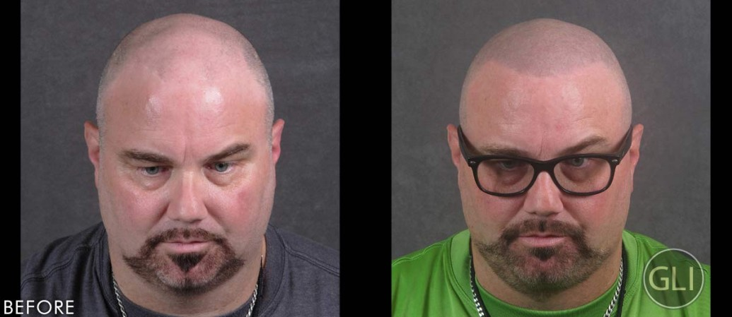 Kevin before & after Scalp Micropigmentation - front