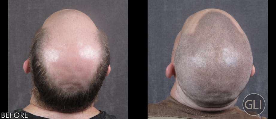 Before & after Scalp Micropigmentation - Paul back