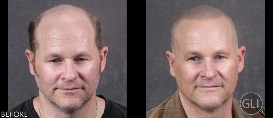 SMP for balding before & after - Paul front