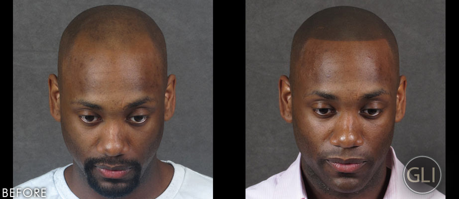 Before & After Scalp Micropigmentation - Prince front