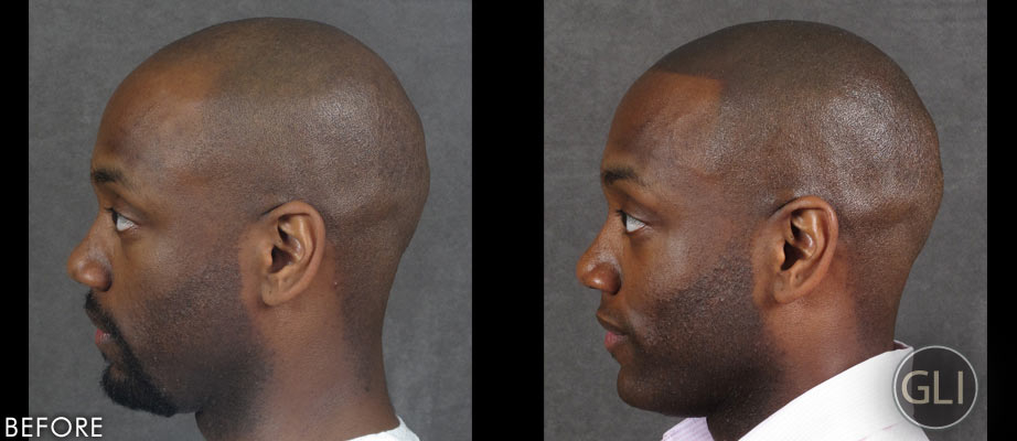 Scalp Micropigmentation for Balding Before & After - Prince right side