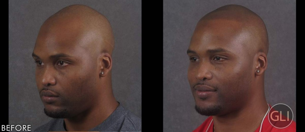 SMP for hair transplant scar repair before & after - Terrence left