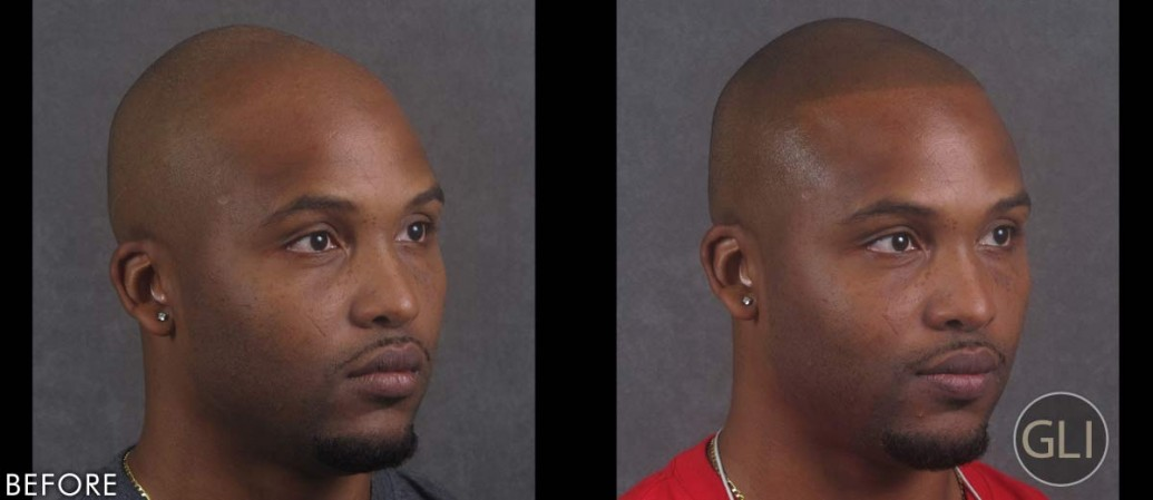 Scalp scar repair using Scalp Micropigmentation - Terrence right
