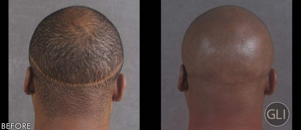 Hair transplant damage fixed using scalp micropigmentation - Terrence back