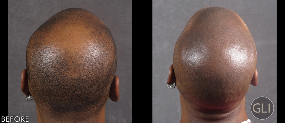 Scalp Micropigmentation for Balding Before & After - Greg Sharp back