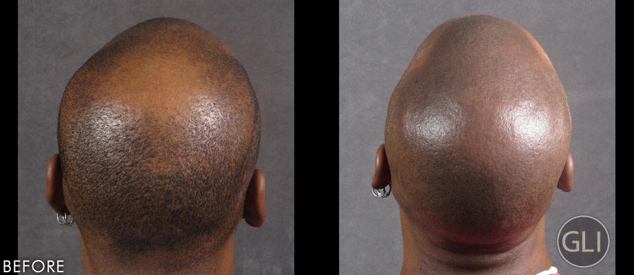 Scalp Micropigmentation for Balding Before & After - Greg Sharp back