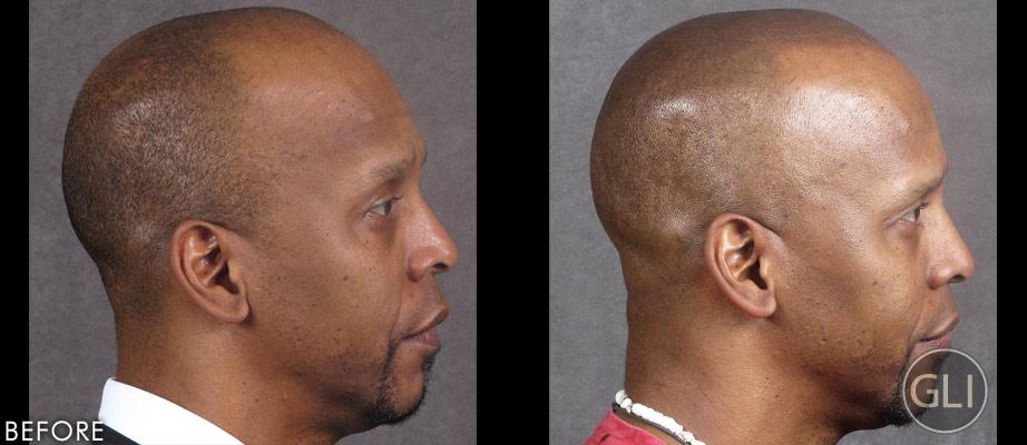 Before & After Scalp Micropigmentation - Greg Sharp side