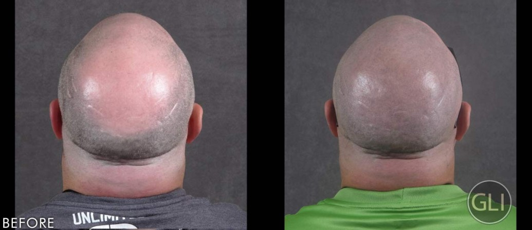 Kevin before & after Scalp Micropigmentation - back