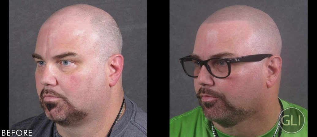 Kevin before & after Scalp Micropigmentation - left