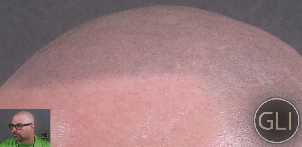 Kevin after Scalp Micropigmentation - close up